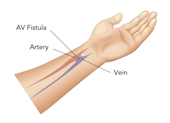 Arteriovenous (AV) fistula created to support dialysis.