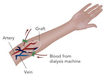 Arteriovenous (AV) graft implanted to support dialysis.