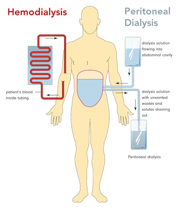 Diagram of hemodialysis vs. peritoneal dialysis to compare dialysis access methods