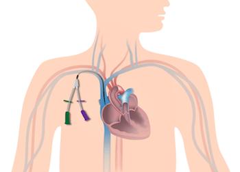 Central venous catheter placed for intravenous hemodialysis.