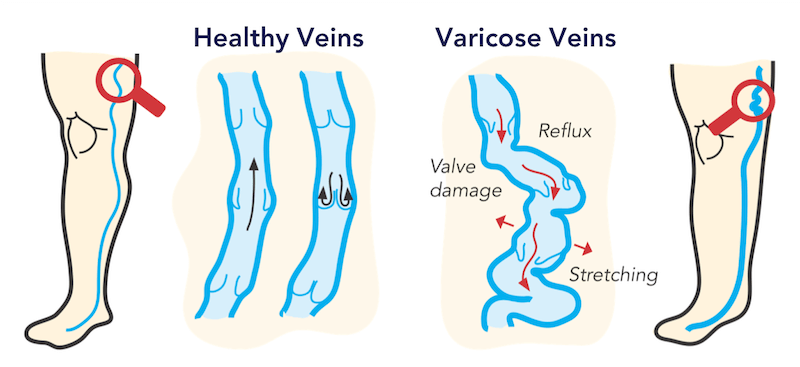Drawing of healthy versus varicose veins