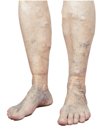 Legs with visible varicose veins and skin color changes in the feet