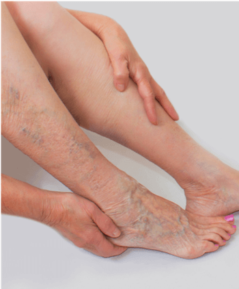 Woman with varicose veins on one leg