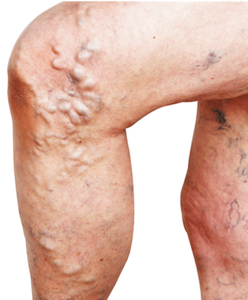 Leg with visible swelling and bulging varicose veins caused by venous insufficiency