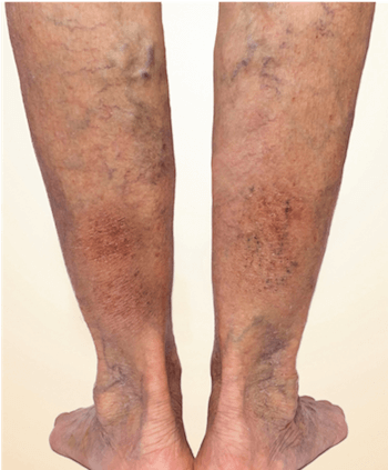 Legs with varicose veins and skin color changes caused by vein disease