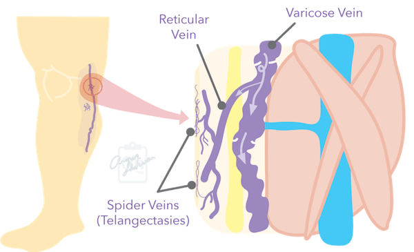 Drawing of spider veins and reticular veins and their relation to venous reflux