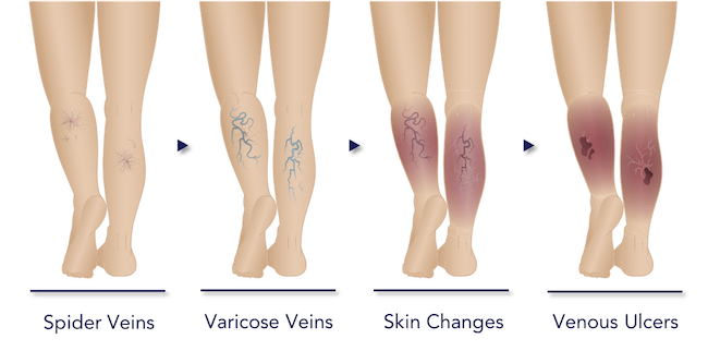 Progression from spider veins to chronic venous insufficiency