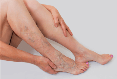 Woman with visible varicose veins holding legs in need of treatment