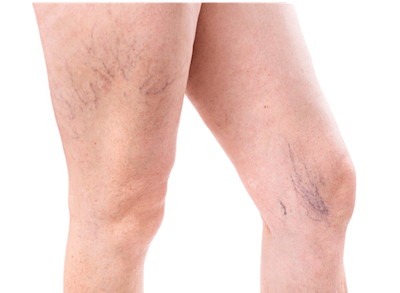 Two legs with visible spider veins and telangiectasia