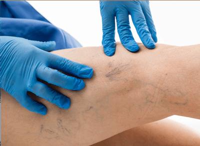 Vein doctor inspecting spider veins on patient's leg