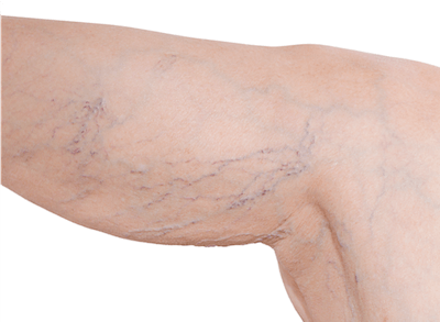 Leg with visible spider veins along the back of the knee and the calf