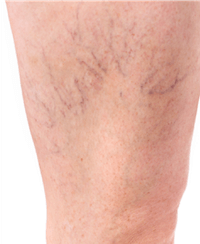 Leg with reticular veins that needs to the attention of a vein doctor