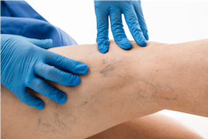 Vein doctor assessing a patient's spider veins