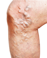 Leg with bulging varicose veins that needs the attention of a vein doctor