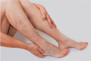 Woman with visible varicose veins holding legs in need of a vein doctor