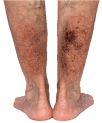 Legs with skin color changes from advanced venous insufficiency in need of a vein doctor