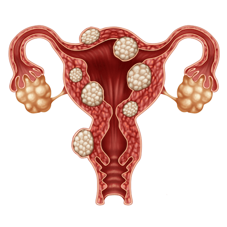 Drawing of uterus affected by uterine fibroids