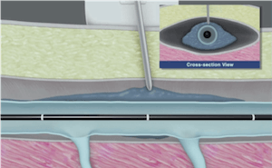 Injection of tumescent anesthesia for VNUS Closure procedure