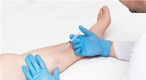 Spider Vein Specialist at VIP providing sclerotherapy spider vein injections