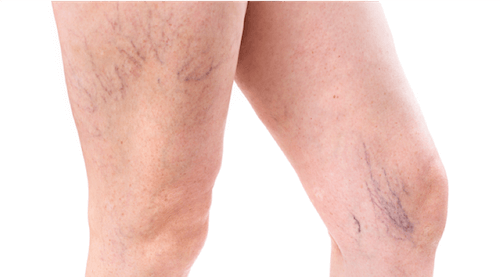 Legs with spider veins and reticular veins